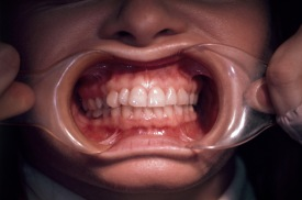 teeth.stretch.frontal.web_
